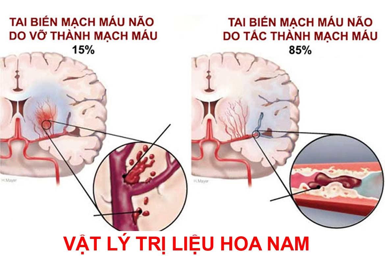 Phục hồi chức năng cho người tai biến mạch máu não bằng bật lý trị liệu