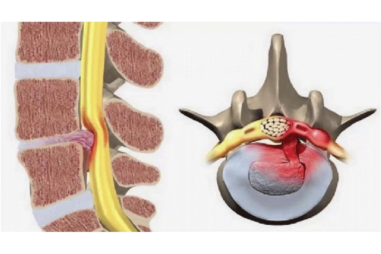 Châm cứu bấm huyệt trong điều trị bệnh xương khớp