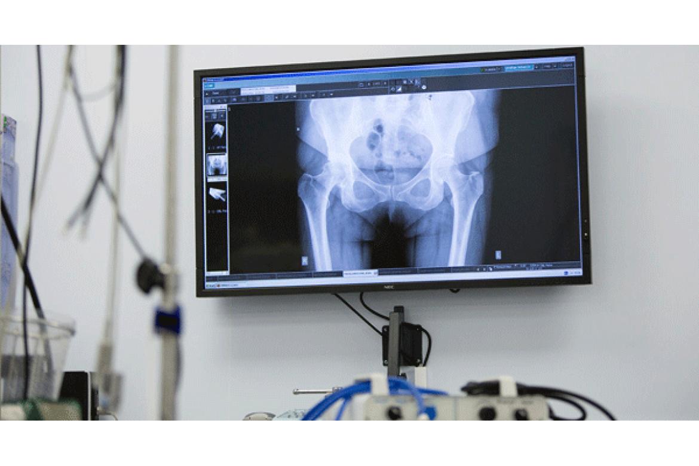 Vật lý trị liệu phục hồi chức năng tại nhà bệnh nhi khoa như bại não , u cơ ức đòn chũm bàn chân khoèo