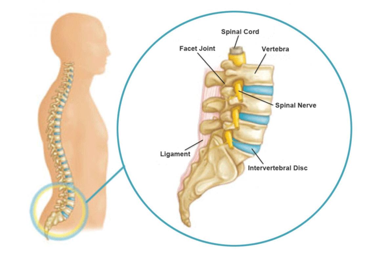 Những nguyên nhân thường gặp dẫn đến đau lưng