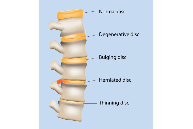 Nguyên nhân thoát vị đĩa đệm cột sống cổ và lưng