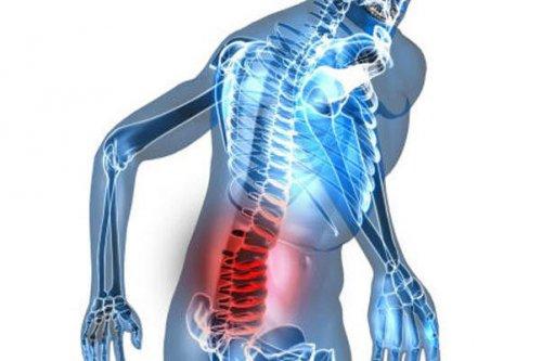 Hậu quả và các biến chứng của bệnh thoái hóa cột sống lưng và cột sống cổ